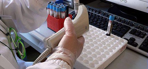 ospedale sant'orsola - malpighi (bologna) - medico al computer con lettore codice a barre - dottore - provette