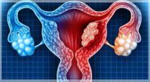 Tumore ovarico, in Emilia-Romagna ogni anno vengono diagnosticati 350-400 nuovi casi